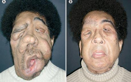 Facial french transplant