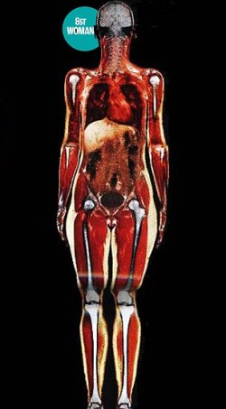 scan of body