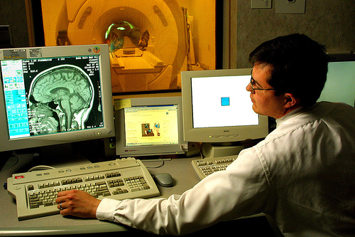 brain-scan-detect-autism
