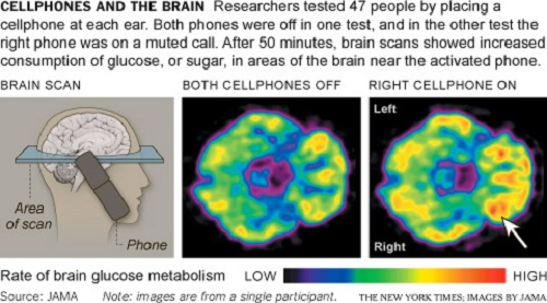 cell phone and the brain