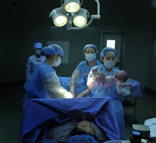 c-sections
