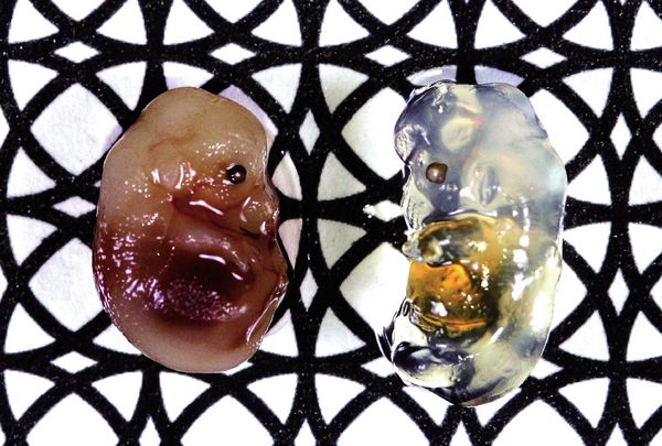 transparent-mouse-embryo-study-organs