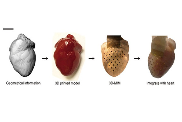 3D-printed-pacemaker
