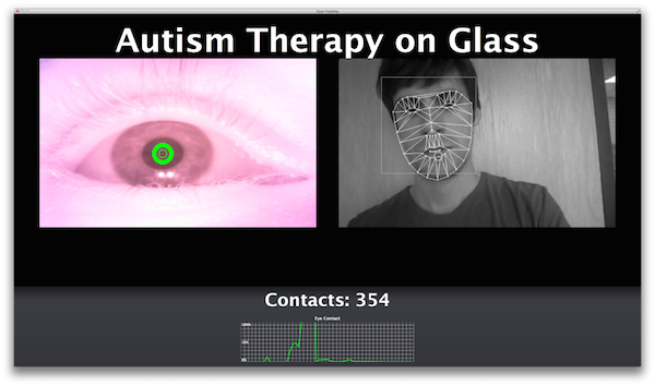therapy glass