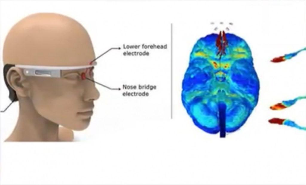 과학자들이 발명 한 웨어러블 장치 알츠하이머 병