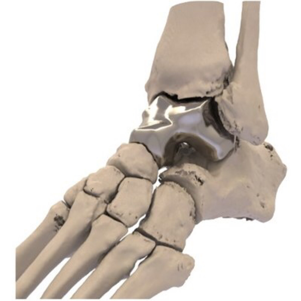 Additive Orthopaedics Gains FDA Approval for First 3D Printed Talus Implant