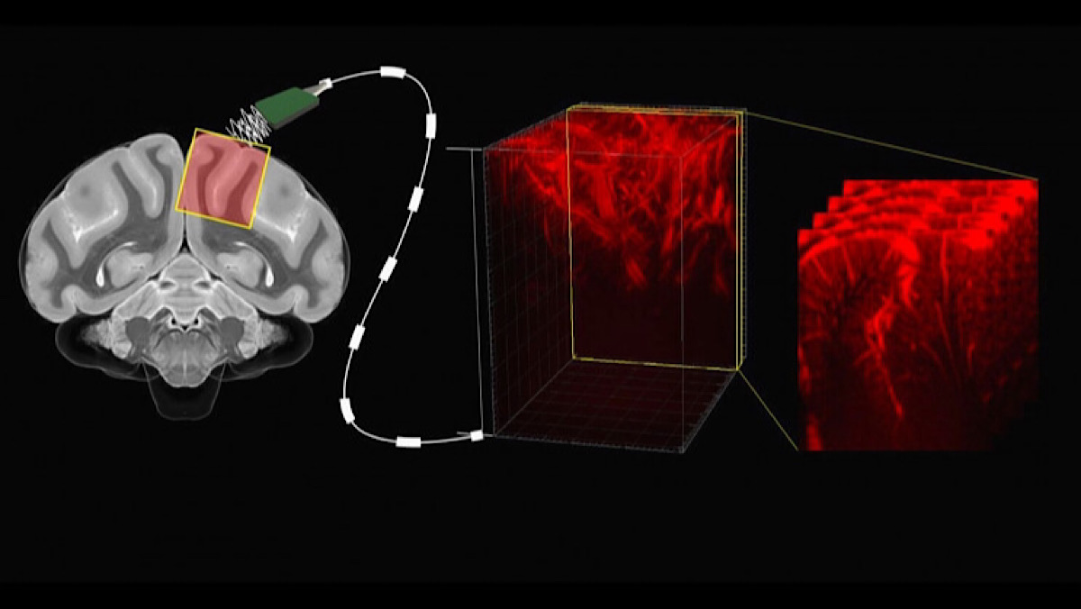 Ultrasound Imaging Technique Allows Scientists To Read Minds