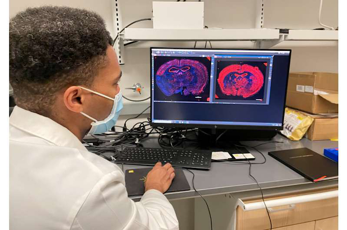 New technology 'retrains' cells to repair damaged brain tissue in mice after stroke