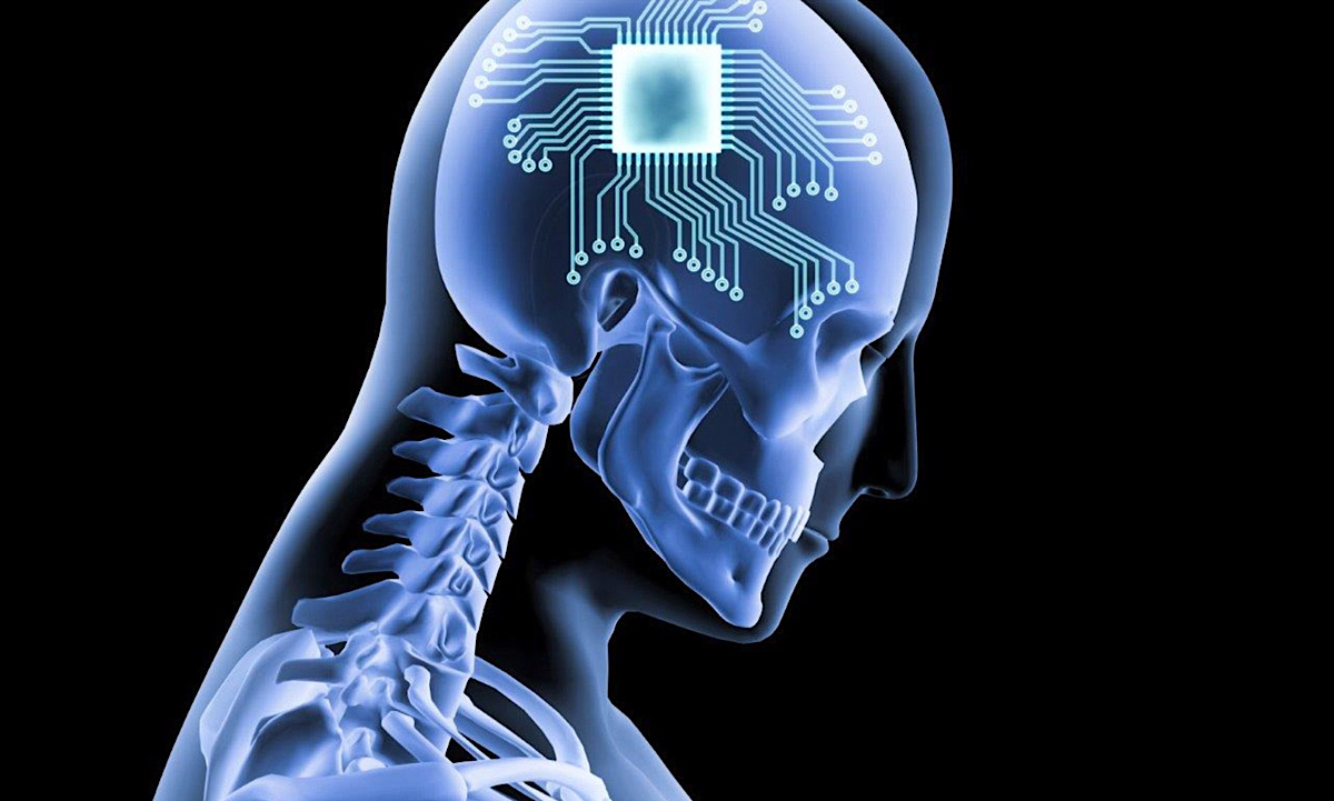 Man paralyzed from neck down uses AI brain implants to write out text messages