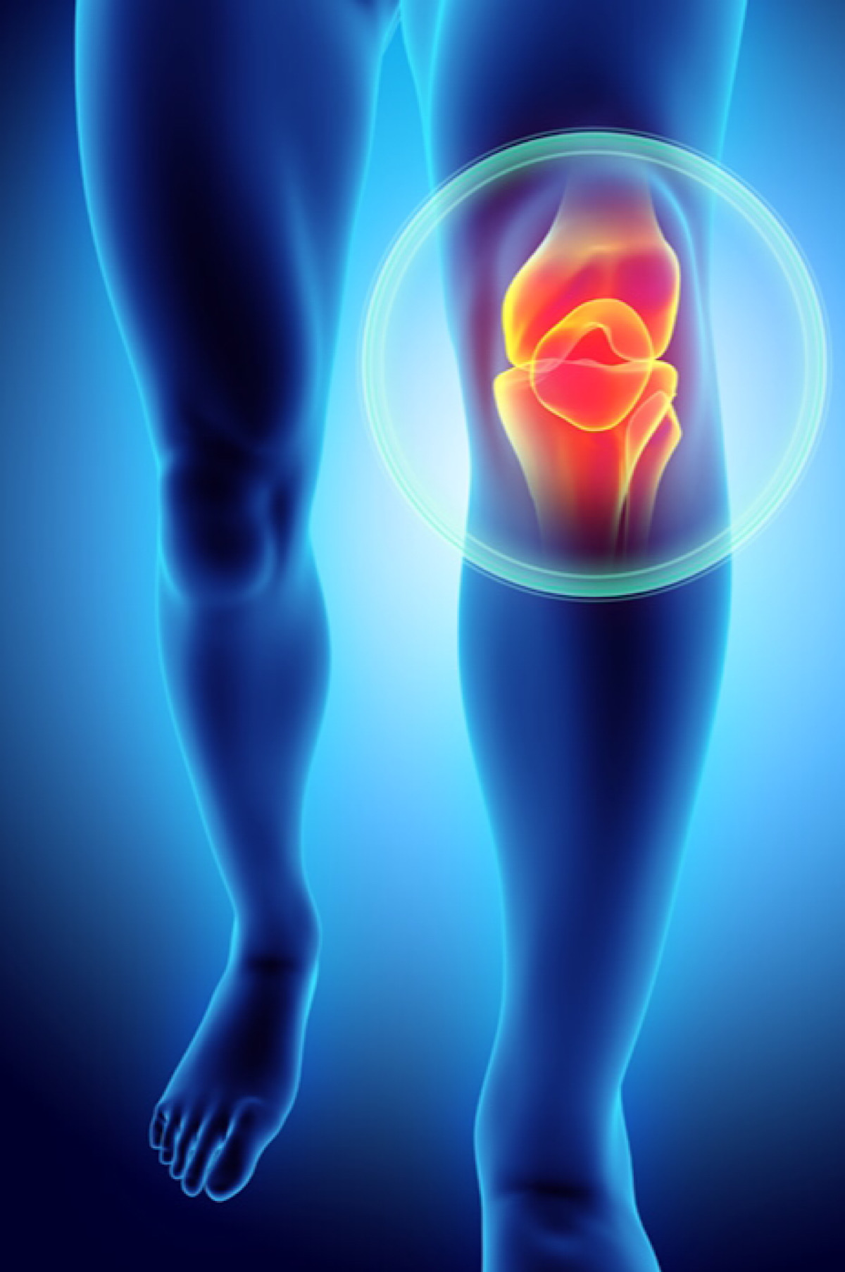3D biomaterial used as 'sponge' for stem cell therapy to reverse arthritis