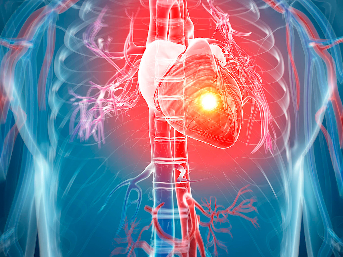AngelMed announces first commercial implantation of real-time heart attack warning system
