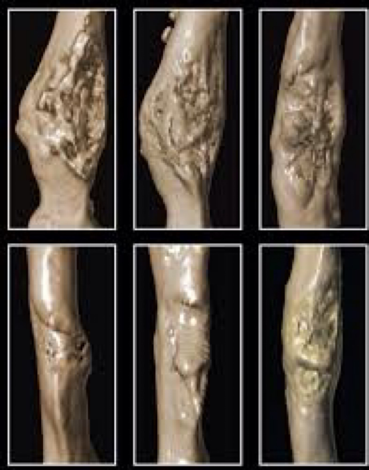 Scientists Use Nanotechnology To Detect Bone-Healing Stem Cells