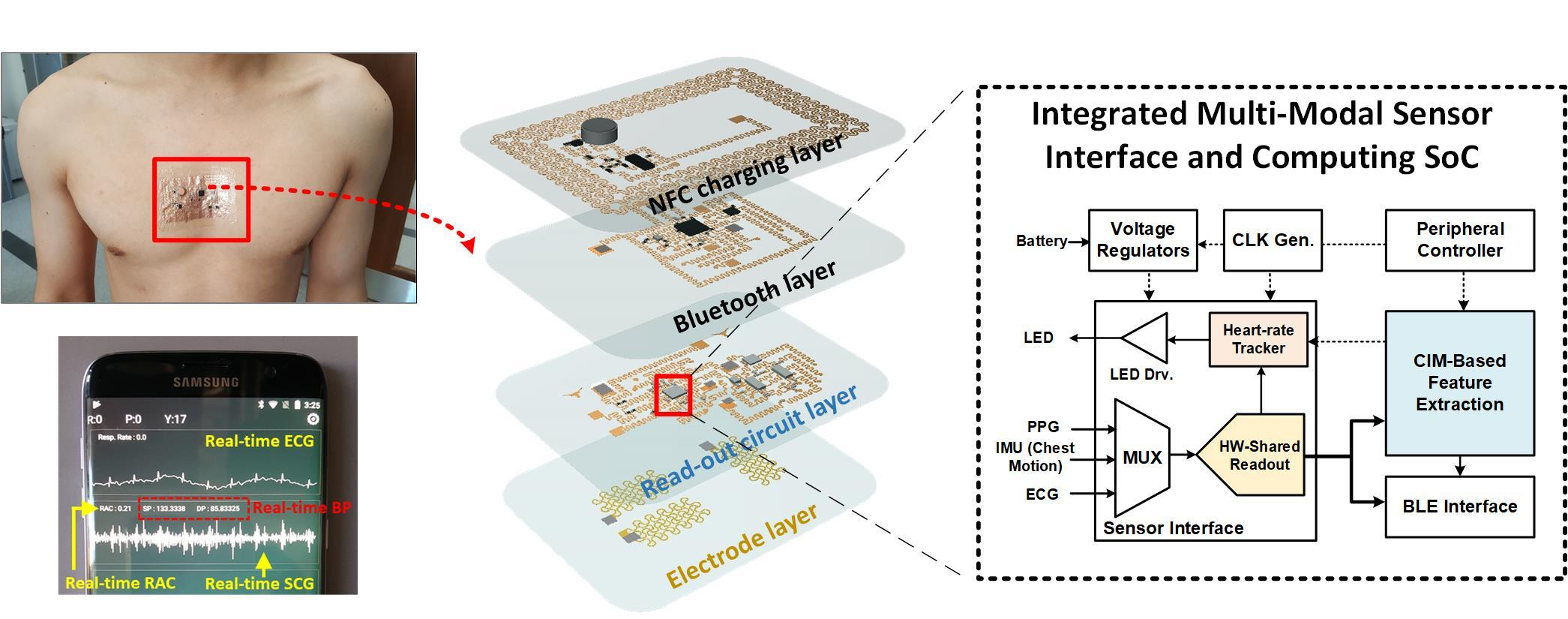 Wireless E-Tattoo for Pneumonia Aims to Transform Patient Monitoring